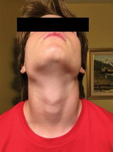 Photographie extra-orale, vue de face.