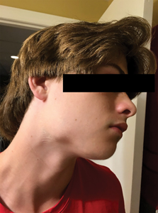 Right-sided extraoral photo