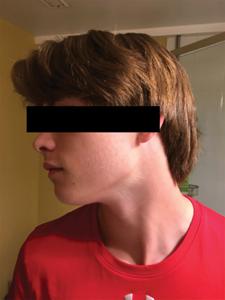 hotographie extra-orale, côté gauche.