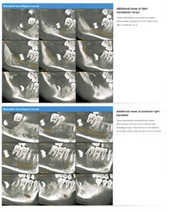 Extrait du rapport de radiologie avec imagerie du Cone Beam révélant l'aspect postérieur droit de la mandibule et son ramus.