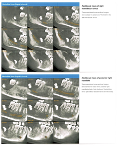 Radiology report with CBCT imaging of right mandibular ramus and posterior right mandible.