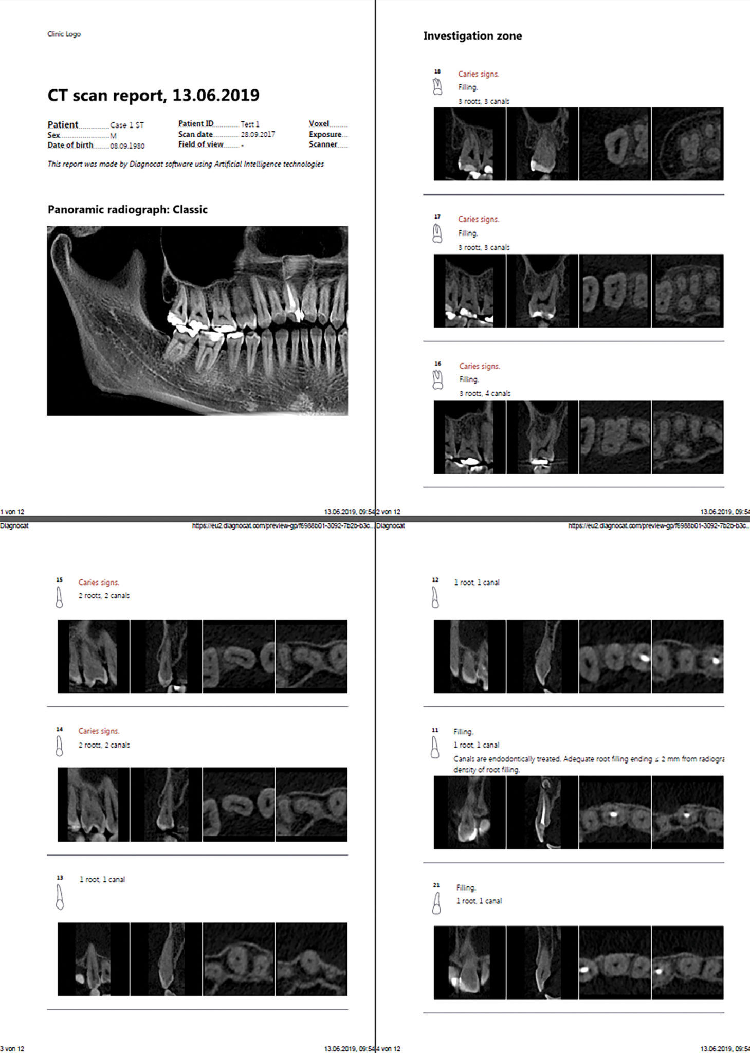 Dedicated endodontic visualization.