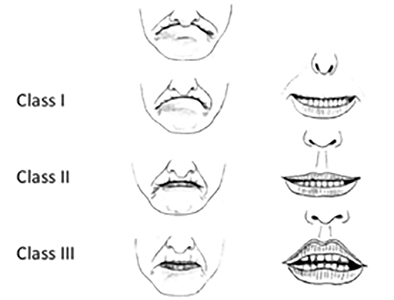 Adapted from: Shah AA, Rafique K, Islam M. (2014). Can difficult intubation be accurately predicted using upper lip bite test? J Postgrad Med Inst. 28(3):282-7 and Zahid Hussain K, Kashfi A. (2003). Evaluating a Patient's Airway: In response. Anesthesia & Analgesia. 97:915-916.
