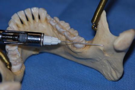Mandibular Anesthesia: Troubleshooting and Overcoming Failure to Anesthetize