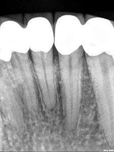 Pre-op X-rays.