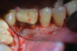During surgery prior to osseous modification, Mandible.