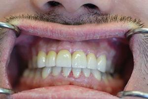New restorations, Mandible, 6-months post-op