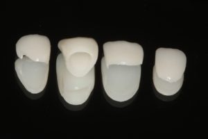 eMax crown and veneers ready to place.
