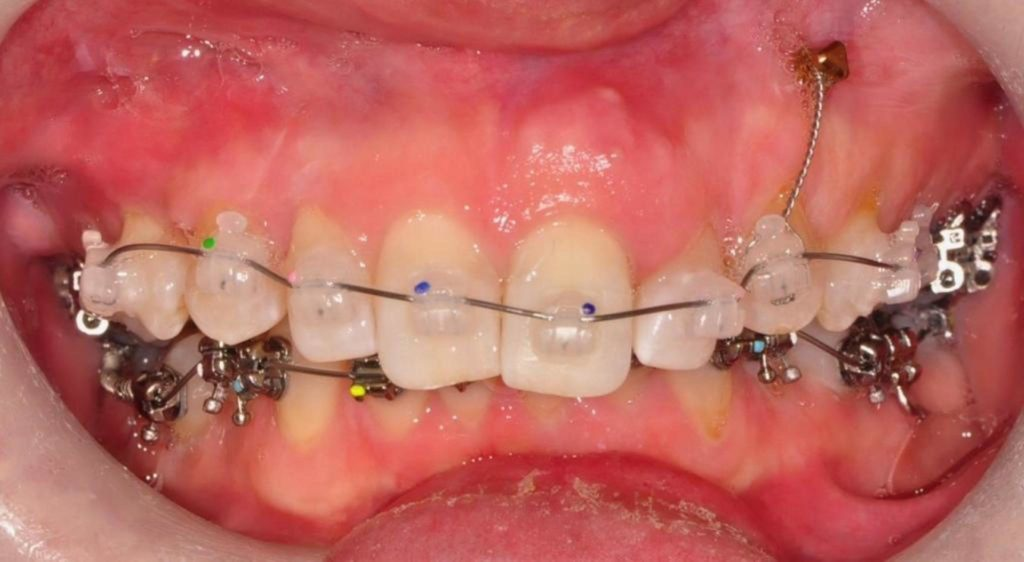 Facial view of orthodontic appliances in place.