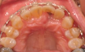 Occlusal view with orthodontic appliances in place.
