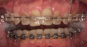Orthodontic movement finished.