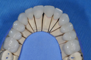 "To best meet the needs of the patient within the financial constraints, we asked the lab to use monolithic ""anterior zirconia"" full coverage restorations in shade 0.5M1 as the patient chose"