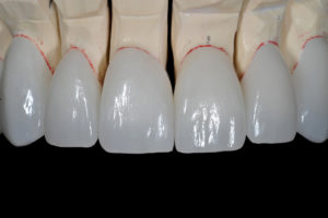 The anterior zirconia, without layering porcelain, is opaque enough to cover the color of the model underneath but transparent enough to maintain vitality