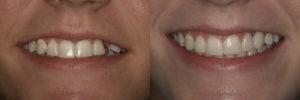 Pre-op and Post-op full smile views.