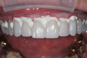 The teeth were isolated, cleaned again with 2% chlorhexidine, and restorations placed two at a time starting with the central incisors and working posteriorly