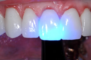 This easy to clean up cement is light cured only after complete clean up including flossing. Not also the transparency of the anterior zirconia when the curing light is applied