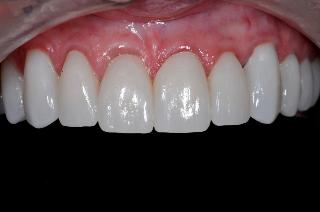 The noted translucency of these monolithic restorations is good even with this light shade with a slight influence of the preparations underneath in the gingival 2/3 of each one