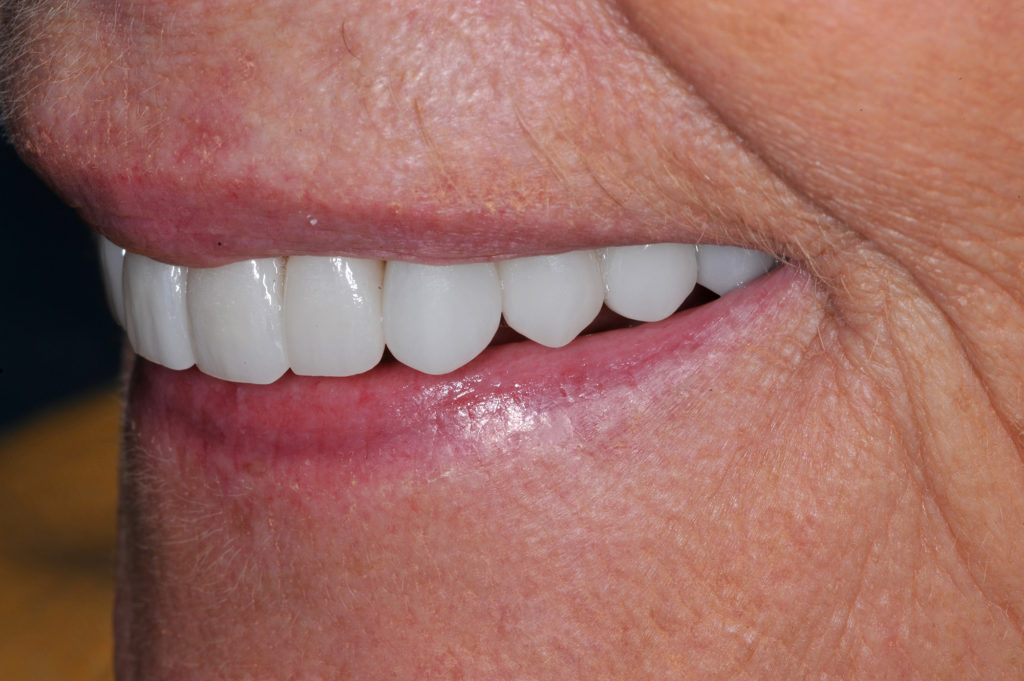 The value of monolithic restorations can be excellent depending upon the clinical situation and patient circumstances