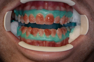 In-office whitening followed by take home whitening.