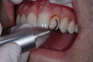 Gingival sculpting with diode laser.