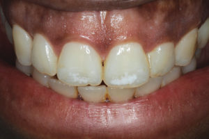 White discolorations present on the labial surfaces of maxillary central incisors.