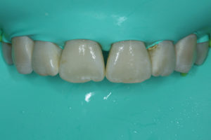 Teeth display improved outcome immediately following treatment.