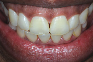 Teeth display similar outcome at one-week following treatment.