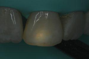 Transillumination of lesion does not show darkening.