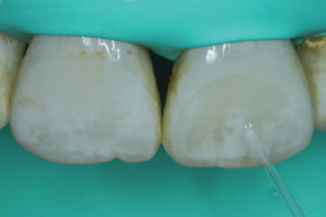 The ICON dry ethanol solvent is used to re-wet lesion however desired effect was not achieved yet.