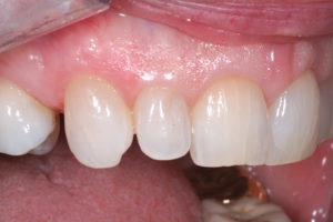 1:1 retracted views of the anterior dentition