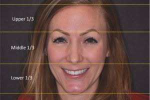 Assessment of the patient's facial thirds and whether there are any disproportions present between the superior, middle and lower thirds