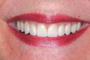 When it comes to re-creating a patient's smile, it is not as simple as placing veneers or crowns on teeth that are whiter and brighter than the patient's existing dentition
