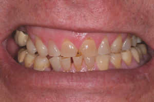 Overall symmetry of the patient's lip mobility must be assessed as well since there is a significant portion of the patient population (8.7-22%)5,6 that has asymmetry