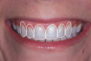 Completing a simply overlay of ideal tooth proportions can be quickly and easily done to assess length to width ratios