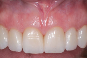 The restorative dentist should also communicate to the his or her lab technician about desired facial surface texture, overall incisal translucency, additional tooth characteristics including incisal effects, embrasures, tooth shape, and variations in value, hue and chroma from the centrals to the cuspids