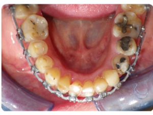 Elastics were used in a Class 3 pattern on the right (upper right 6 to lower right 3) and Class 2 on the left (upper left 3 to lower left 6) to improve the midlines and buccal segment relationships