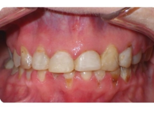 Once approval of the set up was obtained, appliances were removed and the patient was placed in temporary upper and lower Essix retainers. Overall treatment time was 21 months