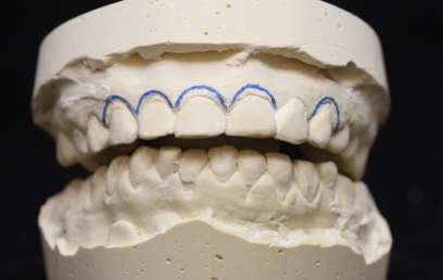 When the models were mounted for review, we were able to see the patient was showing varied gingival heights on their maxillary anterior teeth