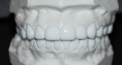 The stent was also used on the diagnostic wax-up model to ensure we were creating a diagnostic model similar to what would be in the mouth after the surgery. In addition, matrices of the max/mn wax up were made to assist with the fabrication of the temporaries during the restorative phase