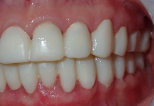 Lower temporaries were fabricated and balanced with the previously fabricated maxillary temporaries