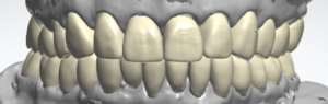 By doing this, we could design the final restorations to match the occlusion that the patient was experiencing and comfortable with. By layering scans of the temporaries and the preps in the software, we were able to keep the design of the final crowns close to the provisionals, with improved esthetics