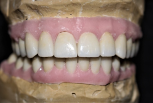 After milling the crowns, they were finished on the bench, taking care to have the zirconia match the crowns made from Emax. When finished, the crowns were returned to the restorative dentist for insert