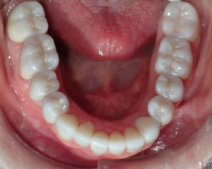The patient was dismissed with instructions to eat soft foods for a few days and to alert us immediately if she felt any interferences when eating. In addition, the patient was to do warm salt water rinses to assist in healing of the gingival tissues