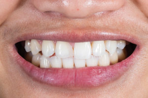 Pre-operative view of the patient's smile. The asymmetry present between the tooth 1.2 (in the place of 1.1) and 2.1 is evident. The shape of the composite does not mimic 2.1 and lacks the desired optical qualities