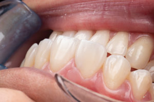 Retracted angle view of the finished composite. The soft tissue contour still leaves something to be desired, but it is not visible when the patient is smiling.
