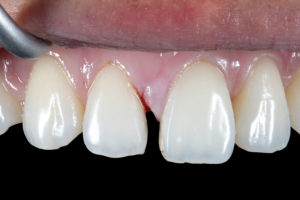 Previous composite removed and diastema exposed.
