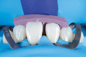 Palatal putty index in place.
