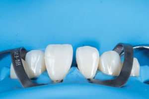 Tooth 2.1 resin addition completed.