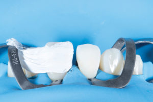 The Enamel surface is ready for optimized bond potential through the use of air abrasion and phosphoric acid etch. Teflon tape is used to protect the adjacent tooth that was previously restored.
