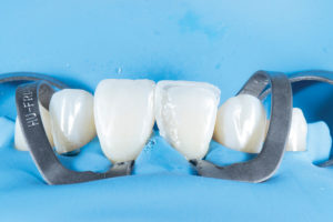 Dentin composite was placed in the necessary areas to mimic the adjacent tooth.
